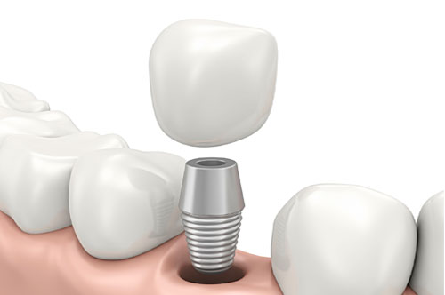 Get Your Wish With Dental Implants (infographic)