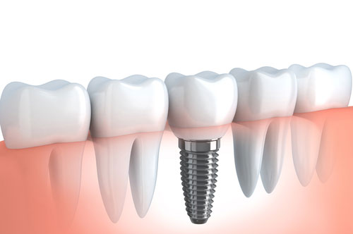 Dental Implants Make Replacement Teeth More Like The Real Thing (video)